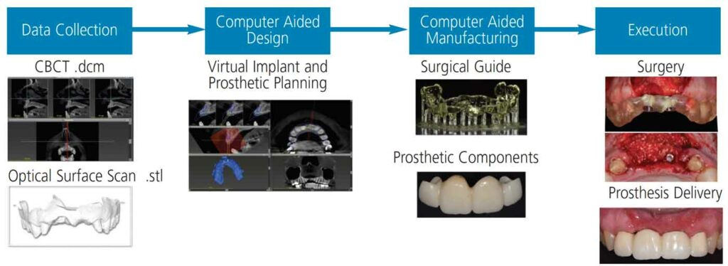 FIGURE 1. Digital implant workflow. The imaging file data sets (.dcm and .stl) are merged for treatment planning.
