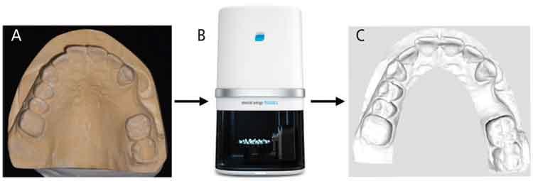 FIGURES 5A through 5C. Stone cast model (A) transferred via desktop scanner (B) into a digital STL file (C).